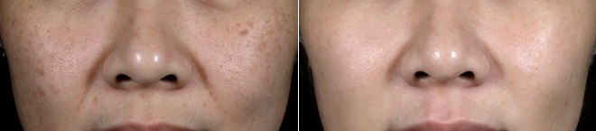 pigment laser as part of the Divine Whitening Program at The Sloane Clinic.