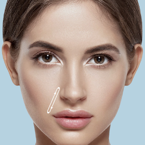Nasolabial folds can make one look older than their actual age