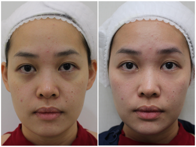 Before & After Natural Facial Fillers to give a non-surgical facelift effect