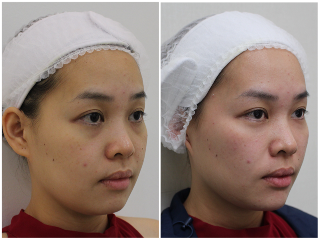Before & After Natural Facial Fillers to give a non-surgical lifting of the cheeks