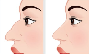 The Lowdown on Nose Thread Lifts - What Some Doctors Don't