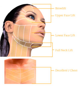 What to do about your neck