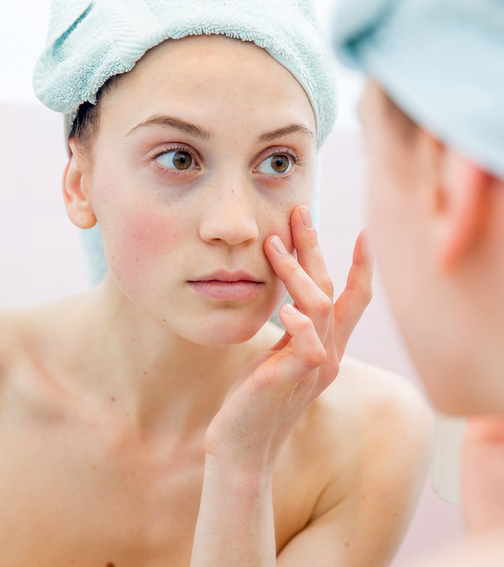 How To Get Rid Of Dark Undereye Circles For Good