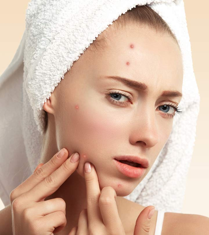 Trending Now: The Skin Program That Cures Acne