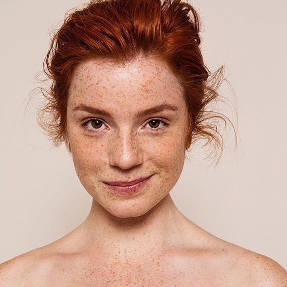Is There Hope For Stubborn Pigmentation?