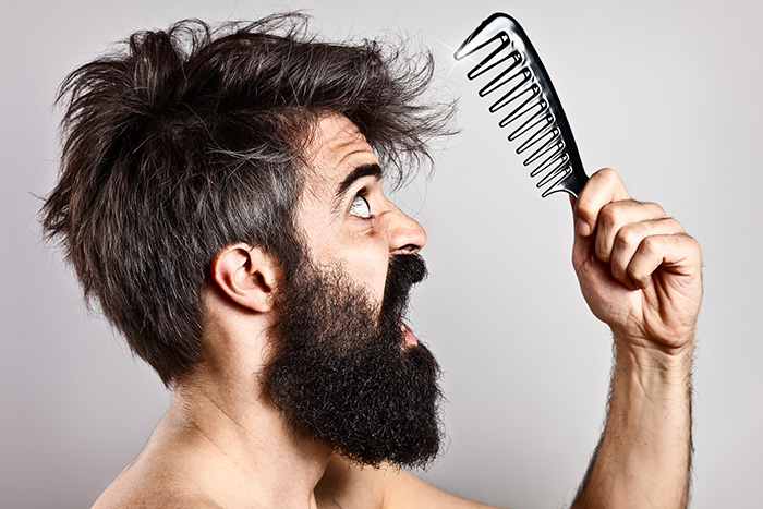 7 Things You Should Know About Male Pattern Hair Loss