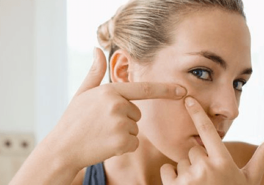 Mistakes To Avoid If You Have Acne